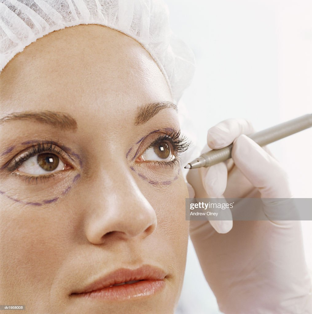 Woman Having Her Eyes Marked With a Pen for Cosmetic Surgery : Stock Photo