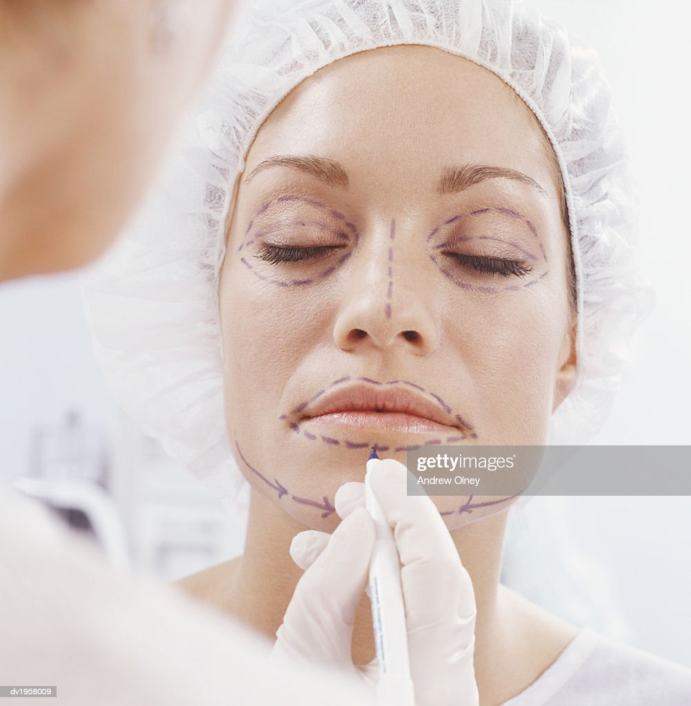 Woman Having Her Face Marked With a Pen for Cosmetic Surgery : Stock Photo