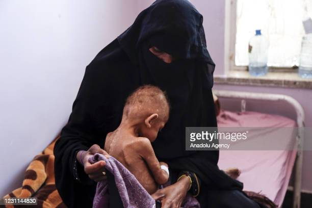 Woman holding her kid receiving medical aid due to malnutrition at Al Sabeen Maternal Hospital as Yemeni children face deadly hunger and aid...