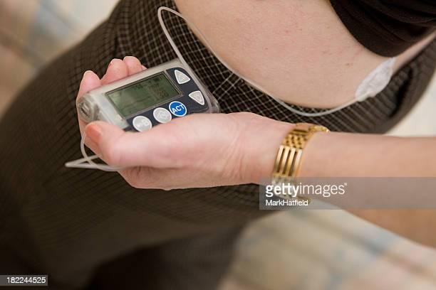 Mujer agarrando bomba de insulina cerca de la cadera