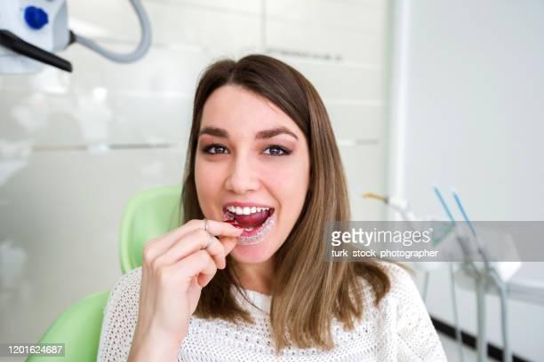 歯科医院で矯正歯科リテーナーを持つ女性 - 矯正歯科医 ストックフォトと画像