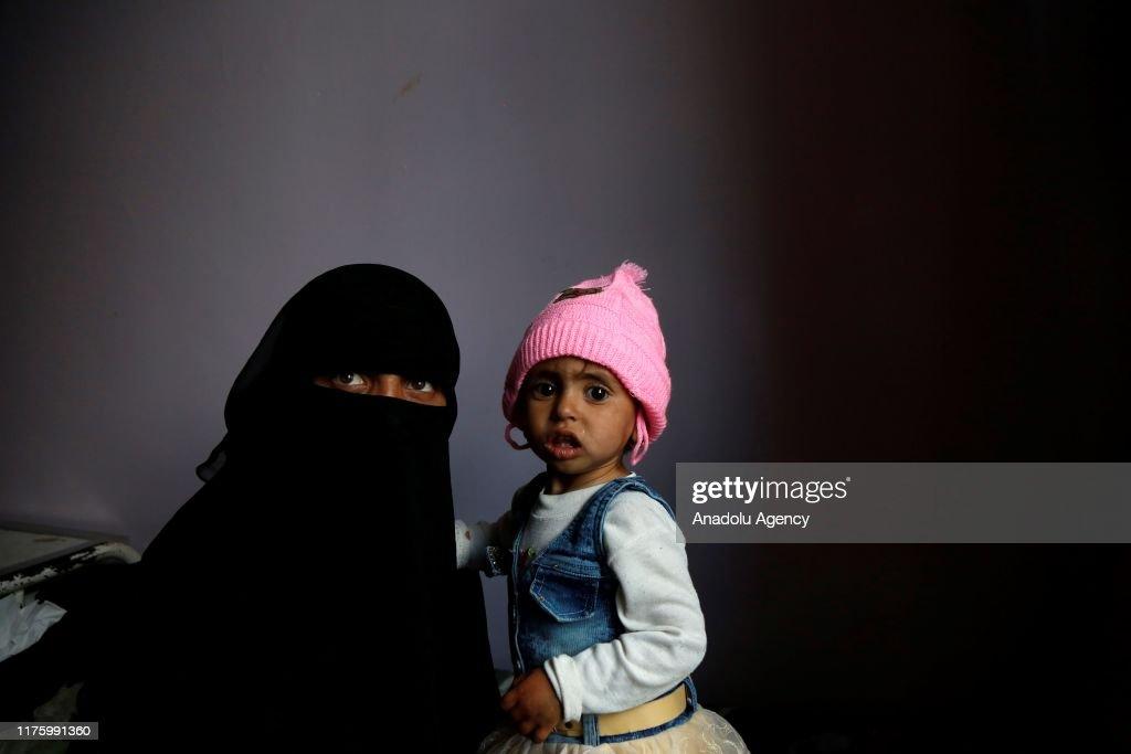 Health concerns in Yemen : News Photo