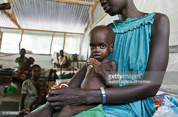 TOPSHOT A woman holds a child with severe malnutrition at a clinic run by Doctors Without Borders in Lankien Jonglei State South Sudan on April 8...