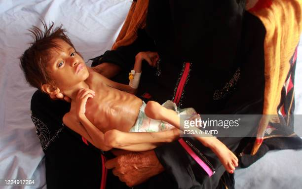 Woman holds a malnourished child at a treatment centre in Yemen's northern Hajjah province on July 2020. - The war in Yemen, the Arabian peninsula's...