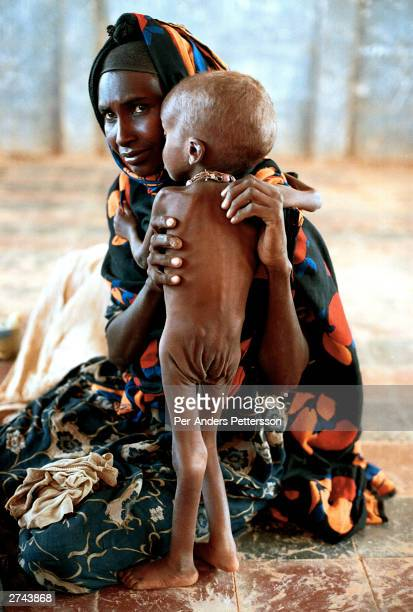 Woman holds her emaciated son in a feeding center April 13, 2000 in Danan, Ogaden Province in Ethiopia. They had walked for days from the countryside...