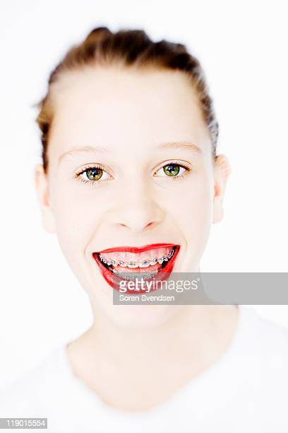 woman in braces wearing red lipstick - beautiful girl smile braces vertical stock photos and pictures