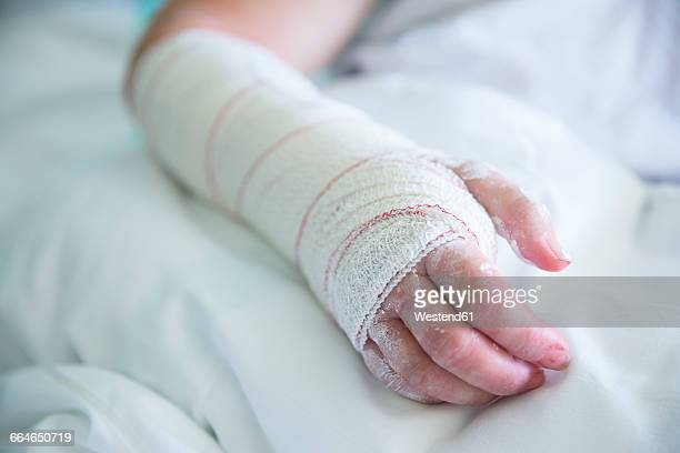 Woman in the hospital, operated hand