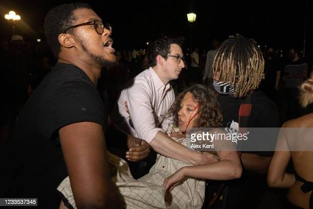 Woman is injured during a scuffled after a man pulled a taser on partygoers in Washington Square Park on June 18, 2021 in New York City. The...