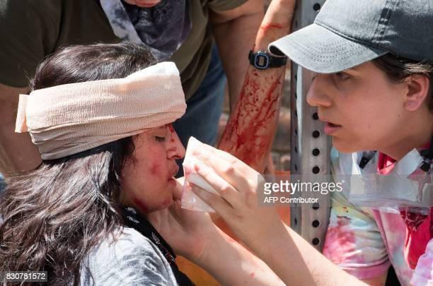 A woman is received firstaid after a car accident ran into a crowd of protesters in Charlottesville VA on August 12 2017 A picturesque Virginia city...