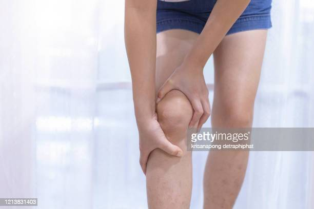 woman knee pain, leg pain - pain stock pictures, royalty-free photos & images