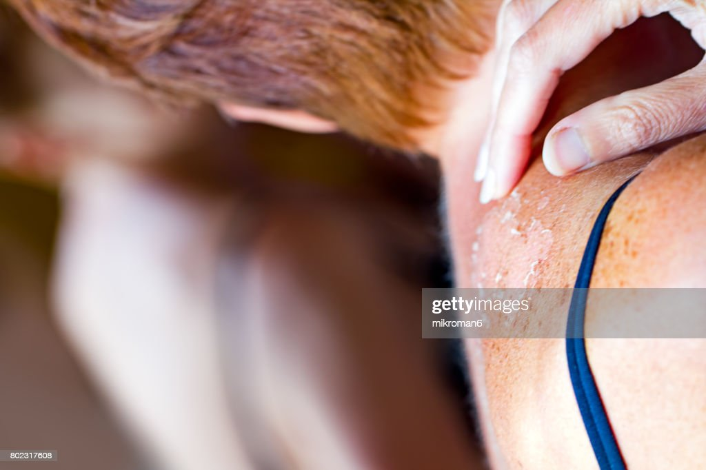 Woman looking in mirror to see sunburned skin on shoulder that peeling off. : Stock Photo