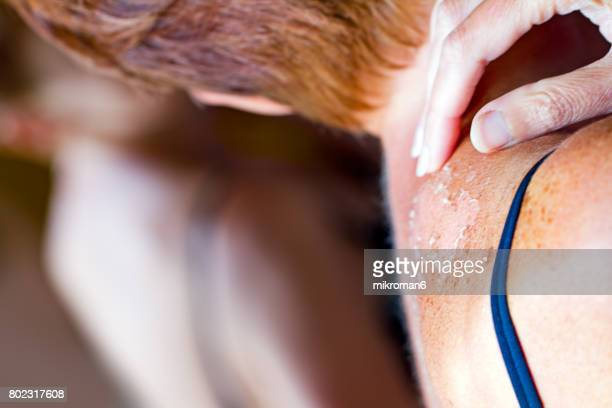 woman looking in mirror to see sunburned skin on shoulder that peeling off. - melanoom stockfoto's en -beelden