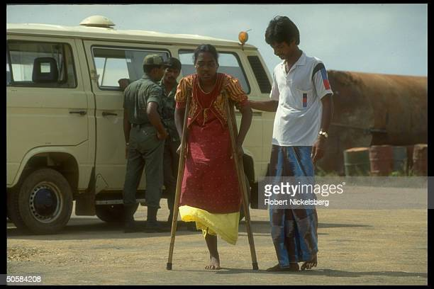 Woman missing leg as govt forces battle Liberation Tigers of Tamil Eelam for control of besieged Jaffna Fort