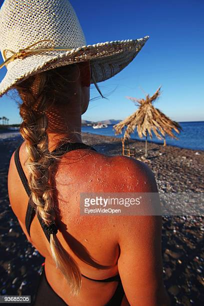 A woman on a beach with a sunburned back near Lindos on July 16 2009 in Rhodes Greece Rhodes is the largest of the Greek Dodecanes Islands