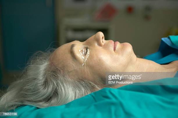 woman on operating table ready for eyelid surgery - eyelid stock photos and pictures