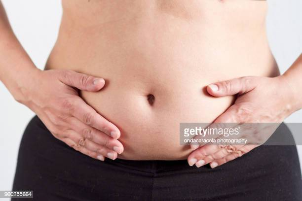 Woman overweight belly
