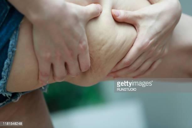 woman pinching body fat on leg, cropped - fesses femme gros plan photos et images de collection