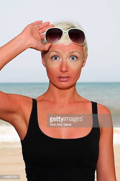 Woman raises her sunglasses revealing her sunburn