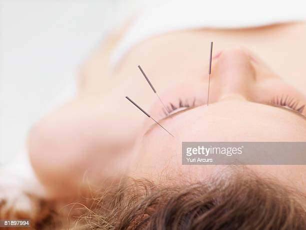 woman receiving acupuncture - acupuncture needle stock pictures, royalty-free photos & images