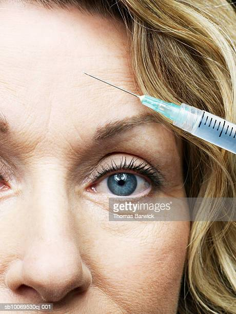 woman receiving injection in forehead, close-up - botox stock pictures, royalty-free photos & images