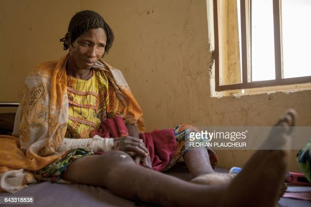 A woman receiving medical care for burns following clashes between the military and Boko Haram Islamists sits on a bed in Borno State northeast...