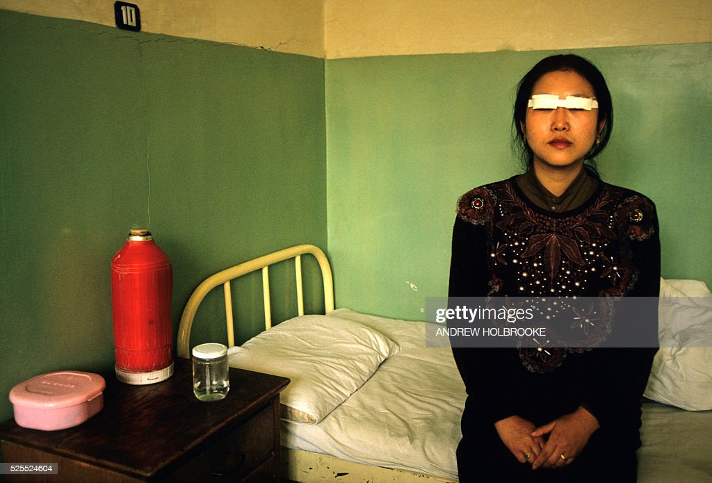 Cosmetic Eye Surgery In China : News Photo