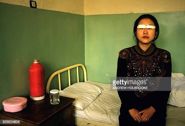 Woman recovering in a clinic after having had her eye lids operated on The surgery removes the folds in the eye lids and makes the eyes look round...