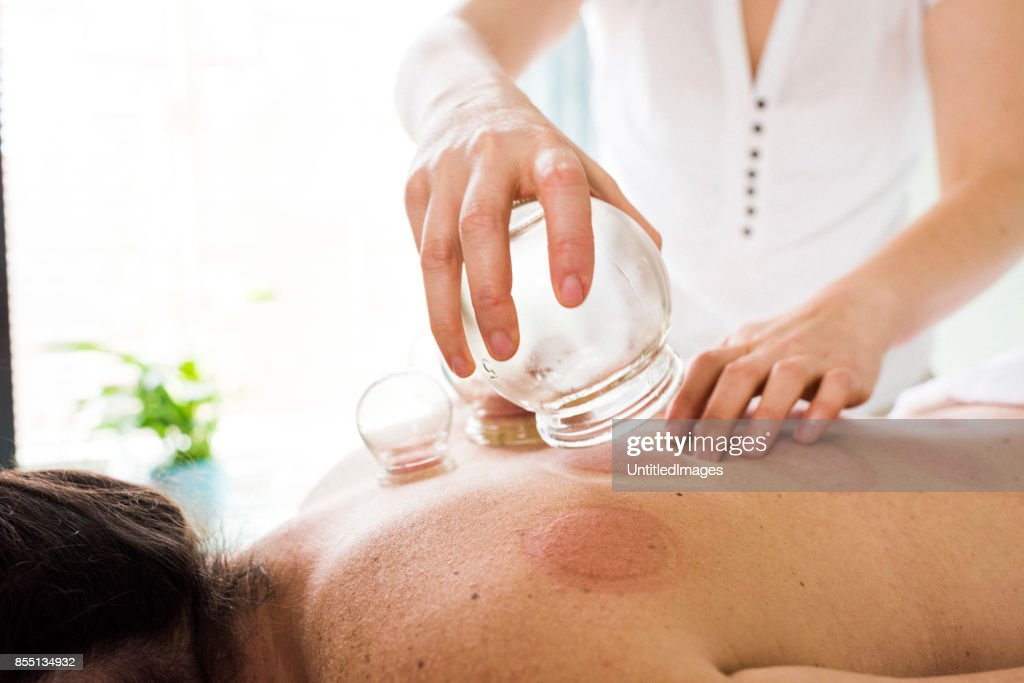 Woman removing acupuncture cups from woman's back : Stock Photo