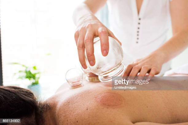 woman removing acupuncture cups from woman's back - acupuncture stock pictures, royalty-free photos & images