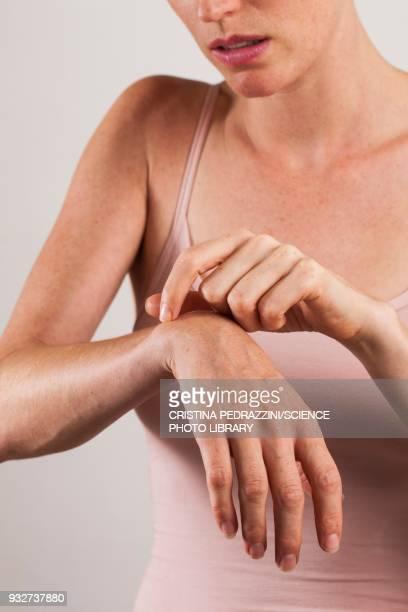 woman scratching arm - dermatitis fotografías e imágenes de stock