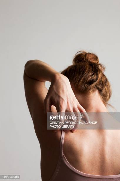 woman scratching her back - eczema stock pictures, royalty-free photos & images