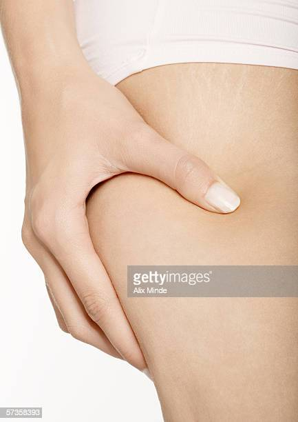 woman squeezing thigh, close-up - celulitis fotografías e imágenes de stock