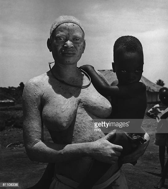 A woman suffering from albinism in Africa circa 1950 The lack of melanin in her skin has caused further medical problems