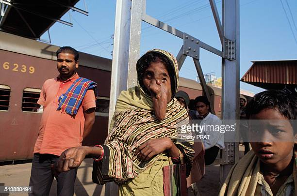 Woman suffering from elephantitis at a train station in Calcutta, India.
