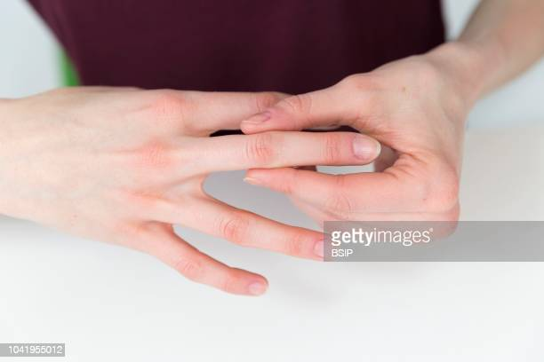 Woman suffering from finger pain