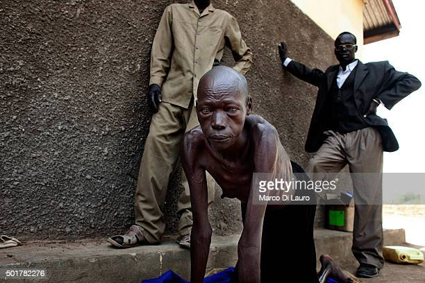A woman that suffer of malnutrition is seen at the AMREF managed PHCC on February 9 2011 in Tali Terekeka County Central Equatoria State Southern...