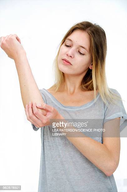 Woman touching her elbow