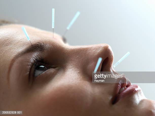 woman undergoing acupuncture treatment, close-up - acupuncture needle stock pictures, royalty-free photos & images
