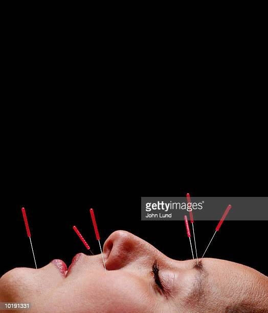 Woman undergoing acupuncture treatment on face, close-up