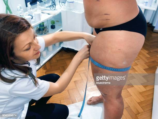 Woman using measuring tape to assess leg volume