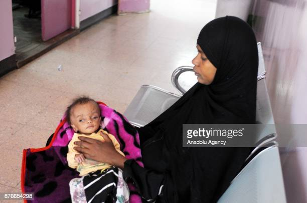 A woman waits with her malnourished baby at al Sabeen Maternal Hospital in Sanaa Yemen on Universal Children's Day on November 20 2017 Millions of...