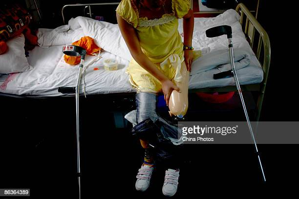A woman who lost her lower limbs in the 2008 Sichuan earthquake puts on her artificial legs at the rehabilitation centre of Sichuan Provincial...