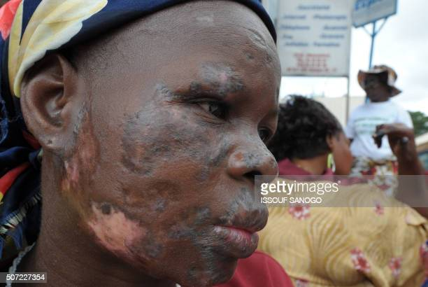 A woman whose face is disfigured which she says is due to the dumping of toxic waste in August 2006 in various quarters of Abidjan is pictured on...