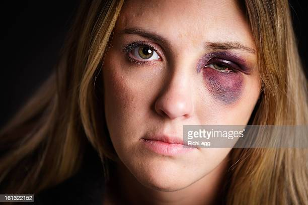 woman with a black eye - bruise stock photos and pictures