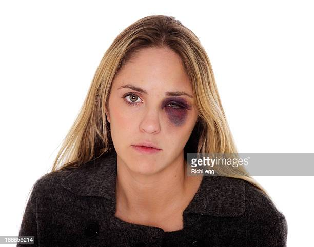 Woman with a Black Eye