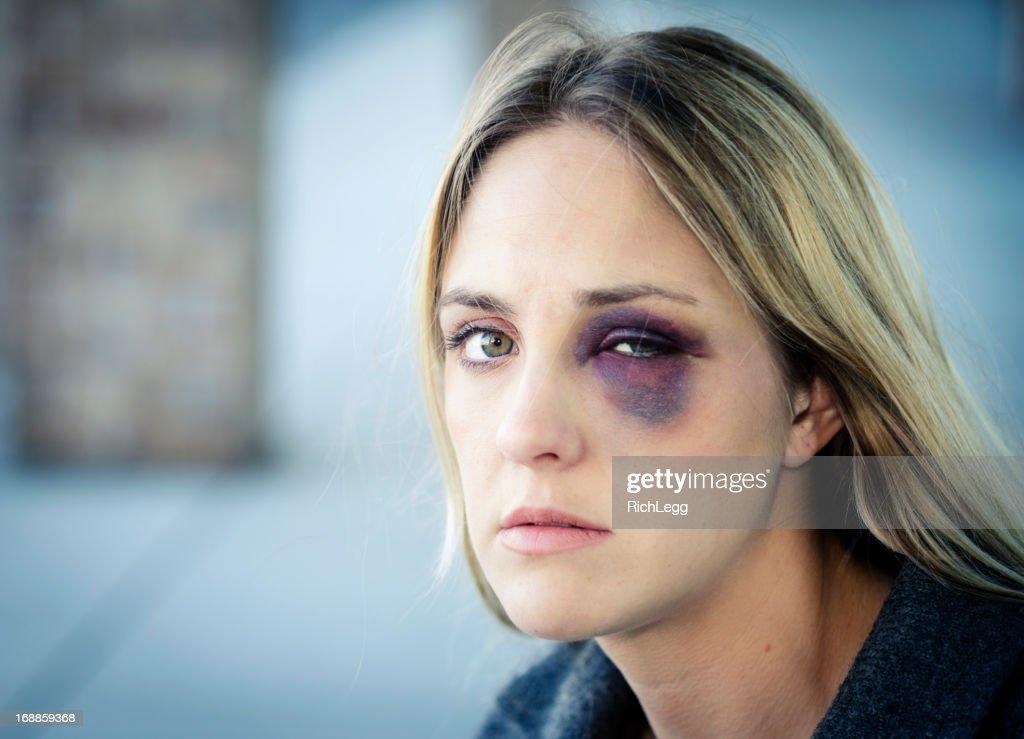 Mulher com um Olho Negro : Foto de stock