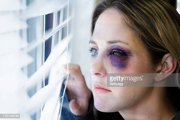 woman with a black eye - beaten stock photos and pictures