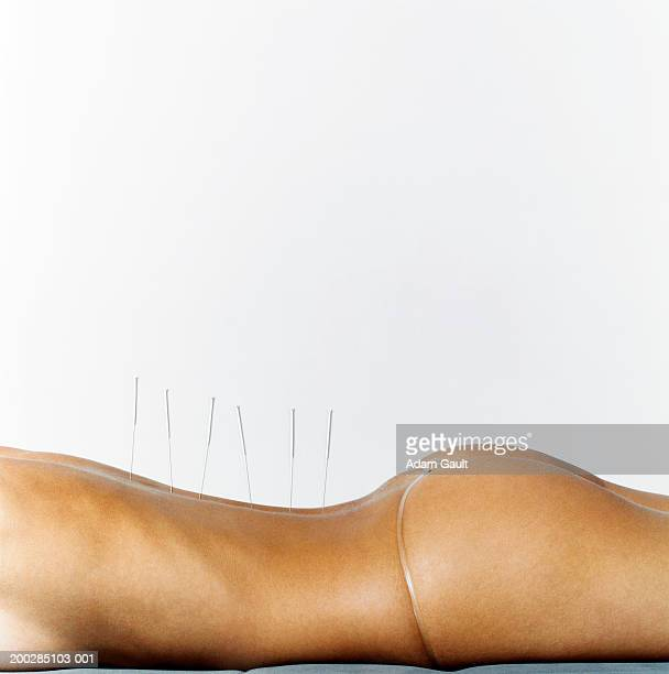Woman with acupuncture needles along line of backbone, mid section