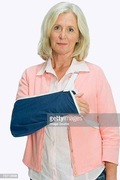 woman with arm in a sling - arm sling stock pictures, royalty-free photos & images