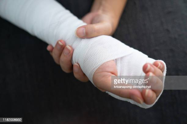 woman with broken arms,woman arm pain - broken arm stock pictures, royalty-free photos & images